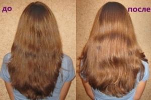 До и после 5 процедур с использованием ромашки