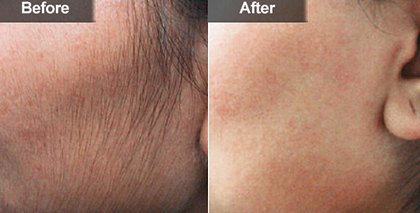 Как удалить волосы с лица навсегда в домашних условиях