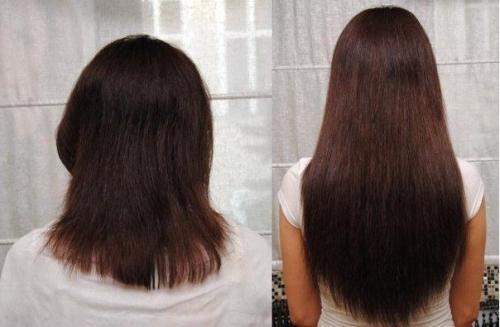 Как лечить волосы при заболевании щитовидки