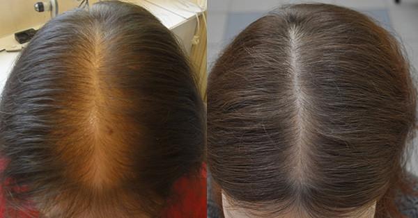Фото до и после 3-х месячного курса Ревалида