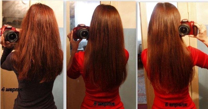 Себозол шампунь против выпадения волос