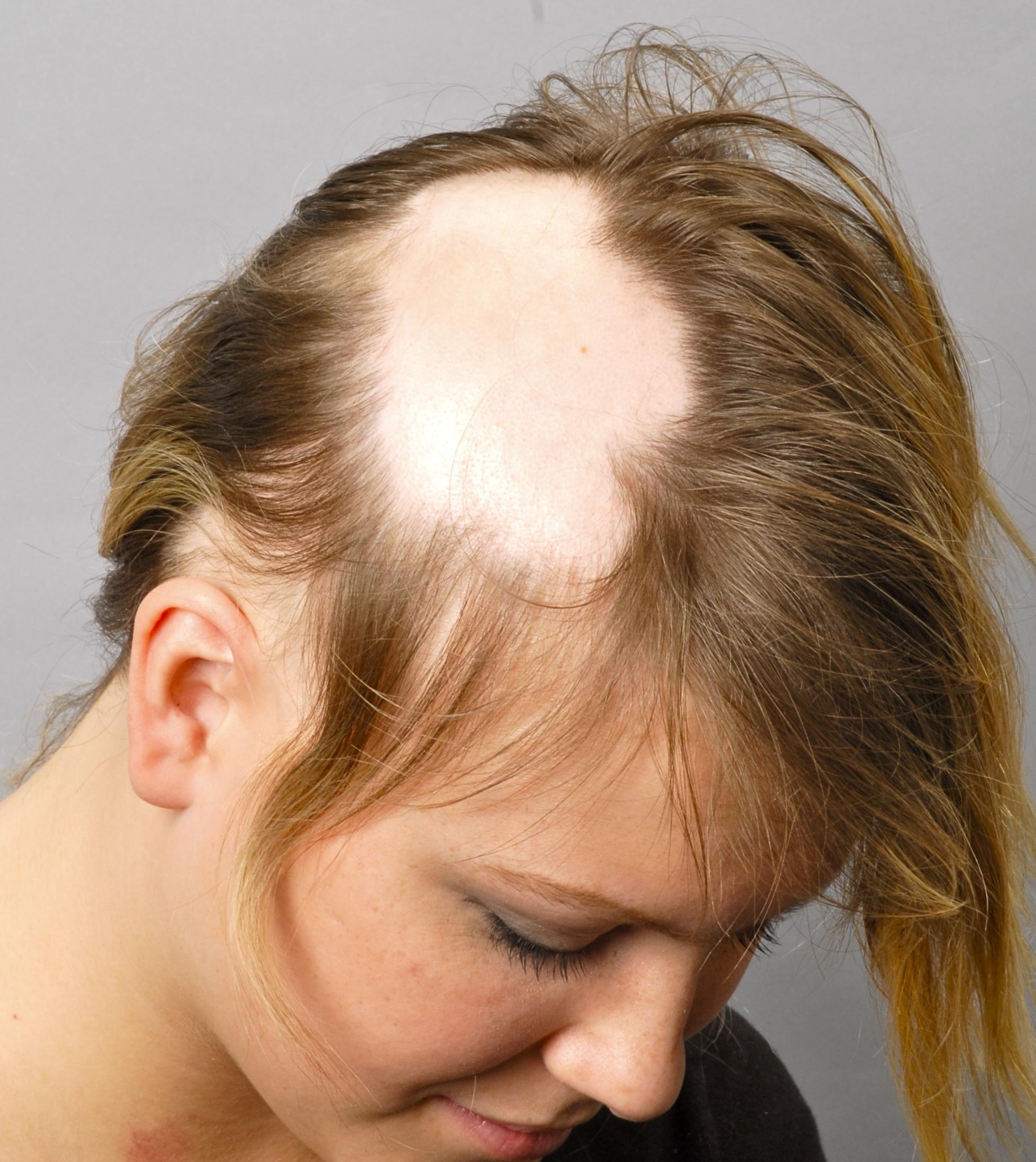 Лечение выпадения волос у девочки подростка 2