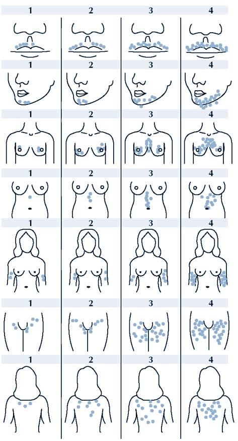 Почему растут волосы у сосков у женщин