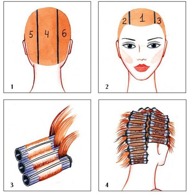 Выпадение волос из-за тестостерона лечение