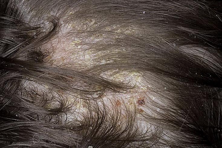 микоз волосистой части головы фото