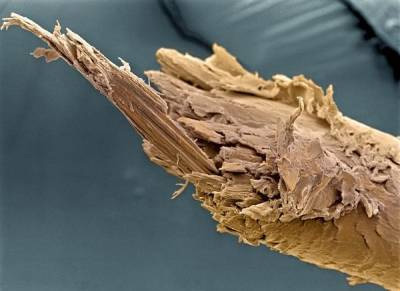 На фото – посеченный волос под микроскопом