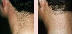 волосы растут на шее у женщин