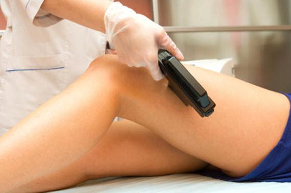 На фото: лазерная эпиляция ног