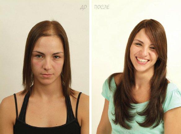 Системы безоперационного замещения волос