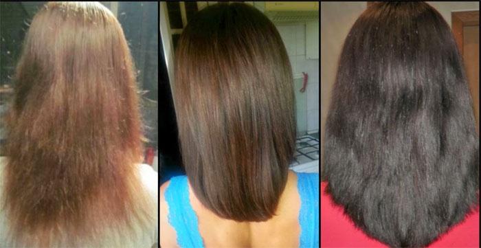 Что нужно от выпадение волос