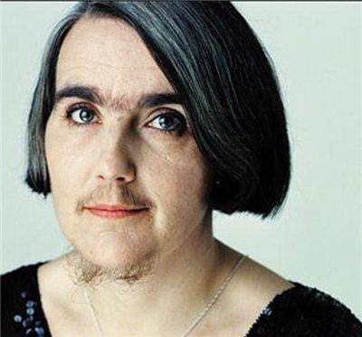 На фото женщина, страдающая гирсутизмом