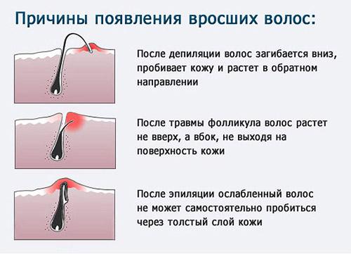 вросший волос в зоне бикини виден под кожей