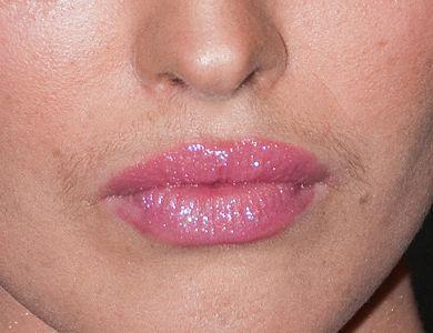 Прыщики над верхней губой у женщин - полезные советы - идеальная кожа