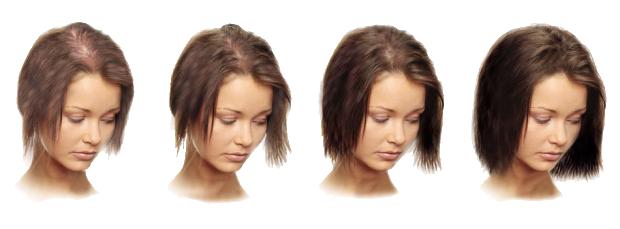 Сильно выпадают волосы? Что делать при выпадении