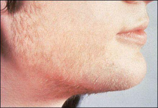 Почему не чернеют волосы на лице
