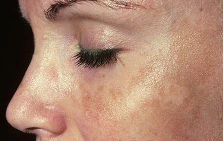 Маски при пигментации кожи лица