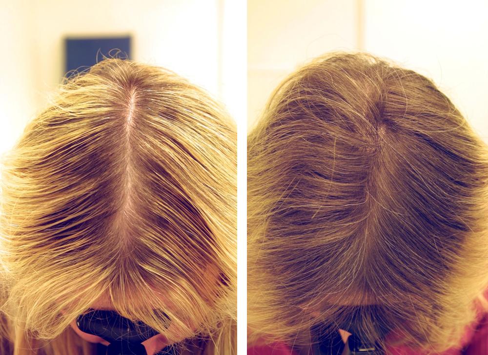 Парикмахерские по лечению волос