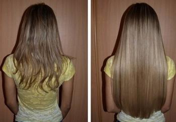 Сульсена от перхоти и выпадения волос