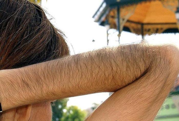 Почему волосы растут на теле