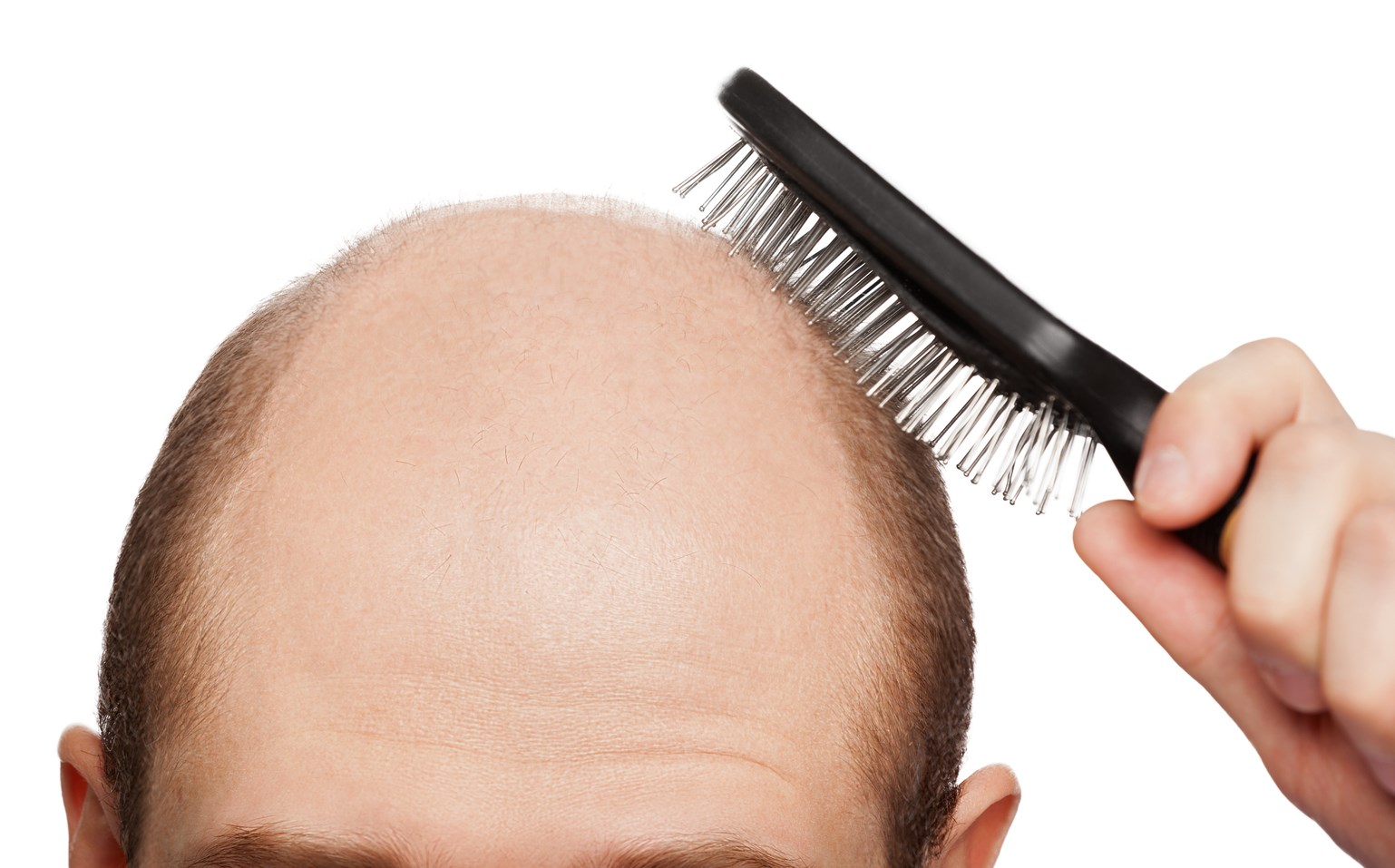Гниющий зуб выпадают волосы