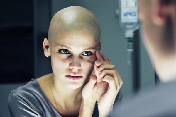 Когда начинают расти волосы после химиотерапии отзывы