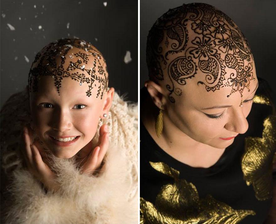 Что сделать чтобы после химиотерапии не выпали волосы