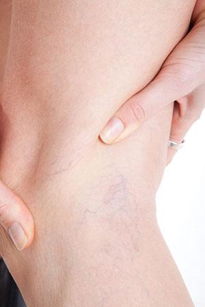 Варикозное расширение вен – одно из противопоказаний к процедуре