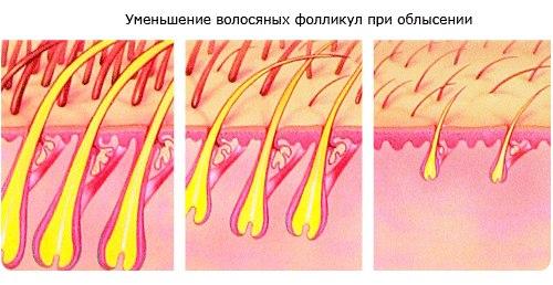 Как оживить волосяные луковицы