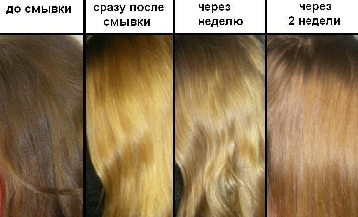 Противопоказания при пересадки волос