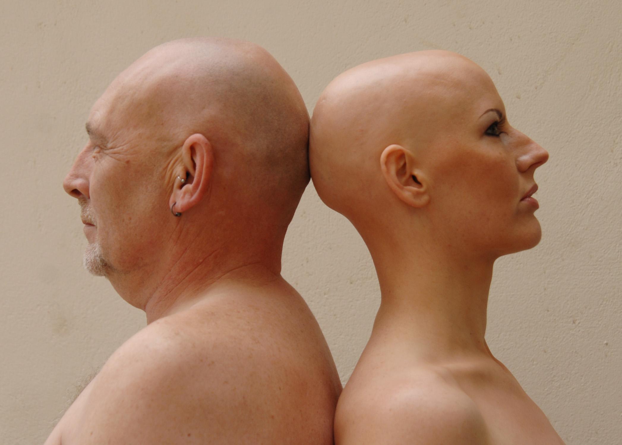 Отрастают ли вырванные волосы на голове