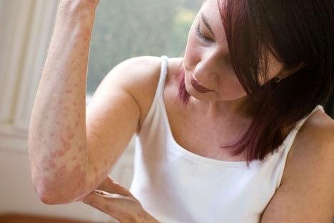 Аллергия может проявляться по-разному!