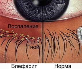 Блефарит – болезнь, которую надо лечить немедленно