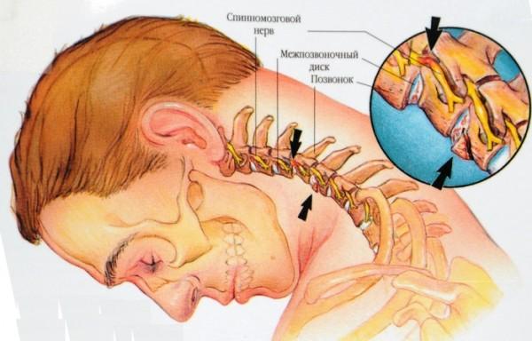 Болит голова над правой бровью, сложно наклониться вперед, а при повороте шеи слышится хруст? Вероятно, вам придется иметь дело с остеохондрозом шейного отдела позвоночника.