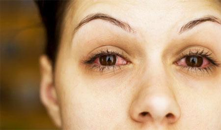 Чтобы не допустить аллергию на компоненты продукта, следует провести тест