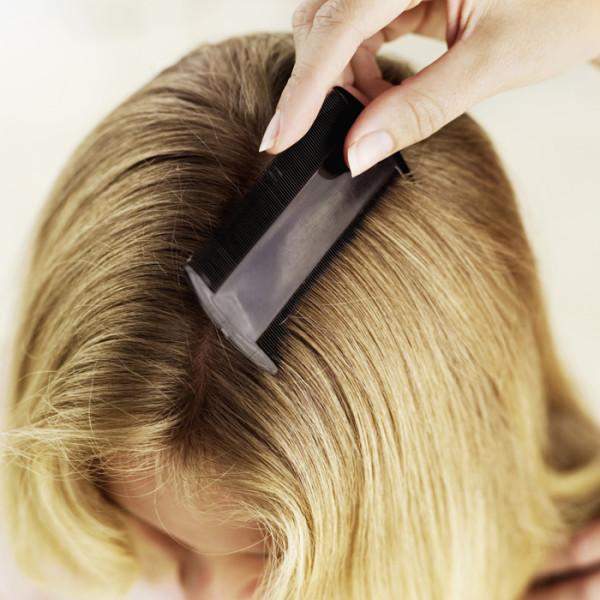 Для устранения гнид и вшей обязательно тщательно вычесывайте волосы вместе с паразитами
