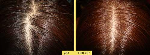 Это один из результатов осветления лимоном темных волос