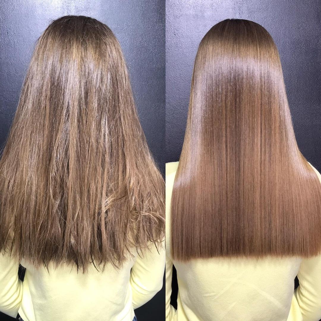 Ботокс картинки до и после волосы