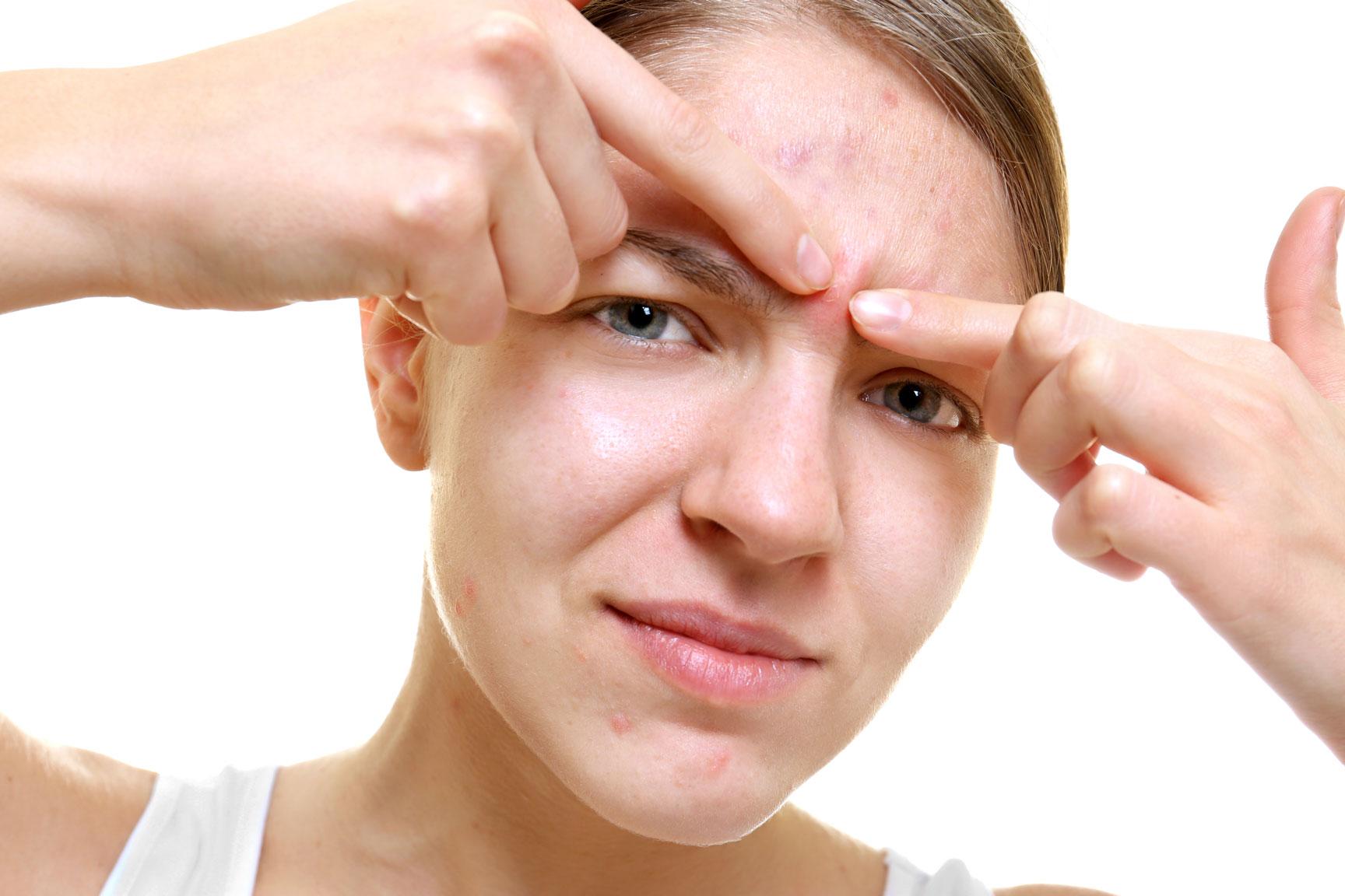 Inflamed facial nerve headache eyebrow — photo 15