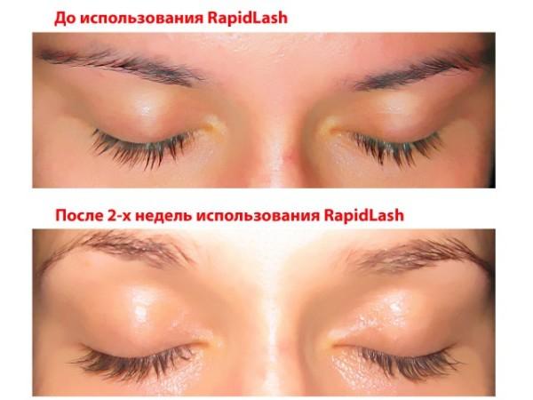 Фото до и после использования Rapid Lash