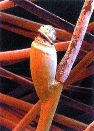 Фото гниды на волосяном стержне