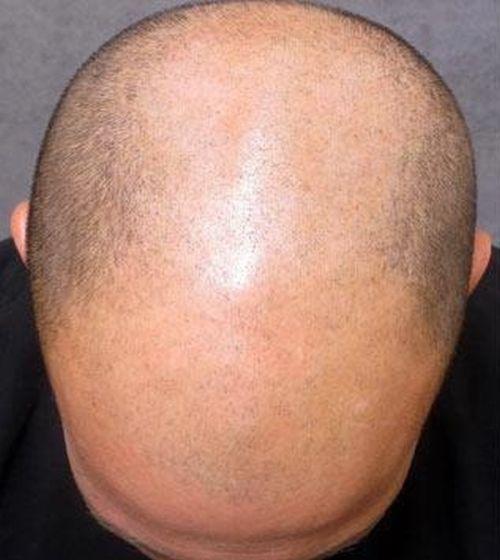 Фото мужского облысения, вызванного андрогенами