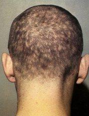 Фото последствий алопеции для мужчин