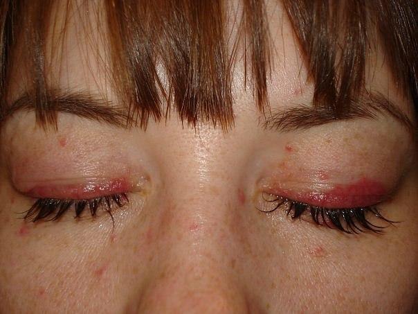 Красные глаза после наращивания ресниц: видео-инструкция по уходу ...