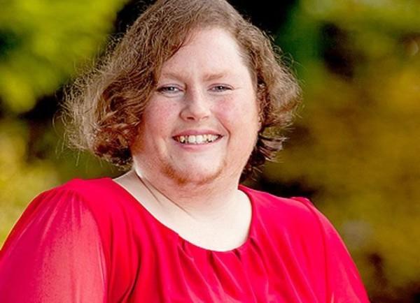 Гирсутизм - заболевание достаточно редкое и встречается лишь у 5% женщин