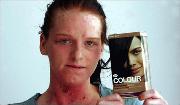 Инструкция к краскам неслучайно содержит многократные рекомендации проведения предварительного теста на аллергию