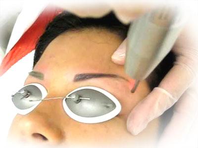 Лазер – наиболее эффективный инструмент для удаления татуажа