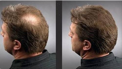 Мужчины тоже стремятся быть красивыми: результат микрокапсульного наращивания