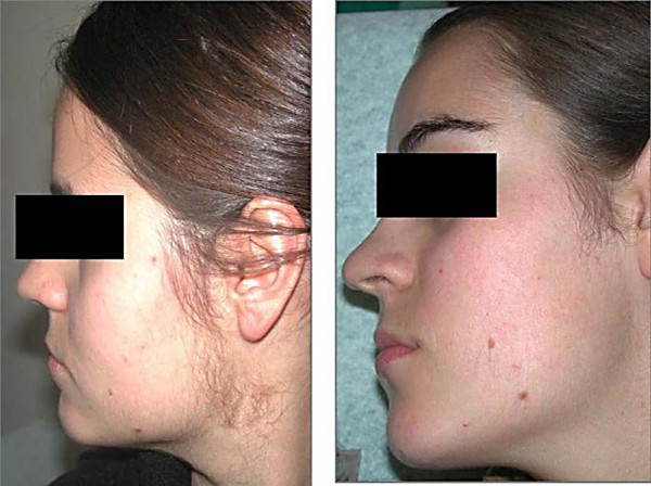 На фото - симптом обменных нарушений и лицо после лечения.