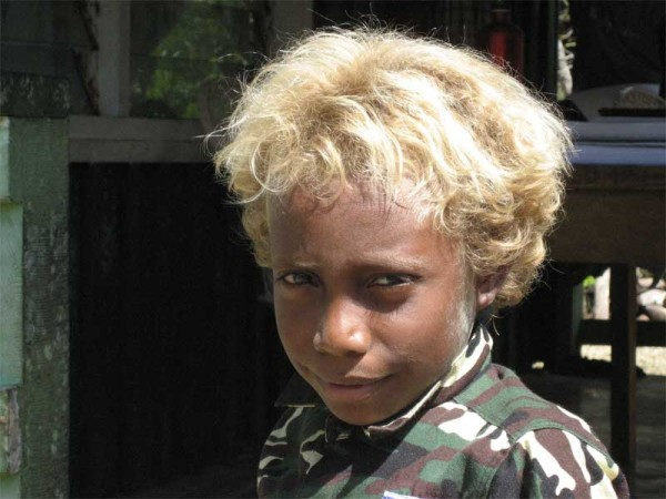 На фото – блондин с Соломоновых островов, загадка для современных генетиков.