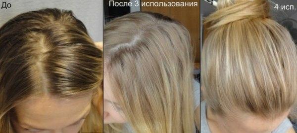 На фото – результат до и после четырех процедур